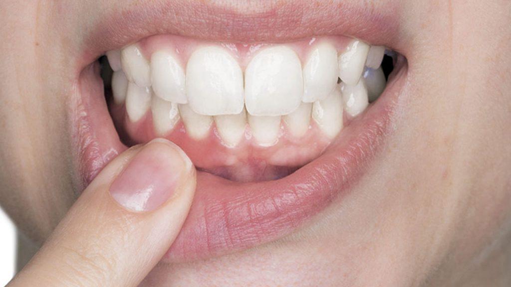 Tártaro no dente pode ser perigoso